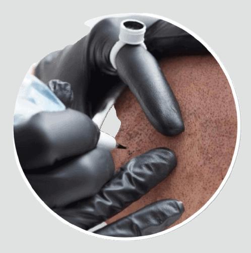 Scalp Micropigmentation Course